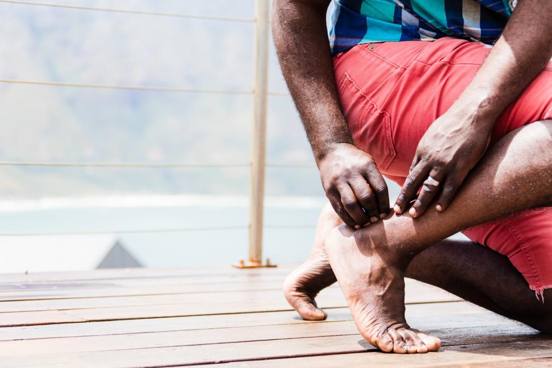 Alterazione della modulazione centrale del dolore nella tendinopatia achillea
