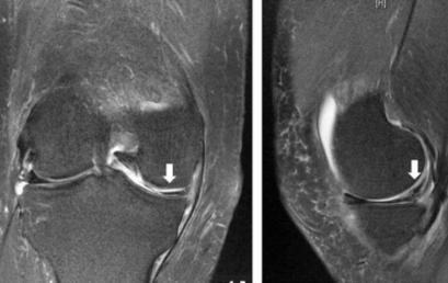 Riproducibilità e accuratezza di 3 test per le lesioni meniscali
