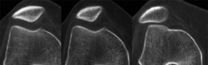 Il ruolo dello stress cartilagineo nel dolore femororotuleo