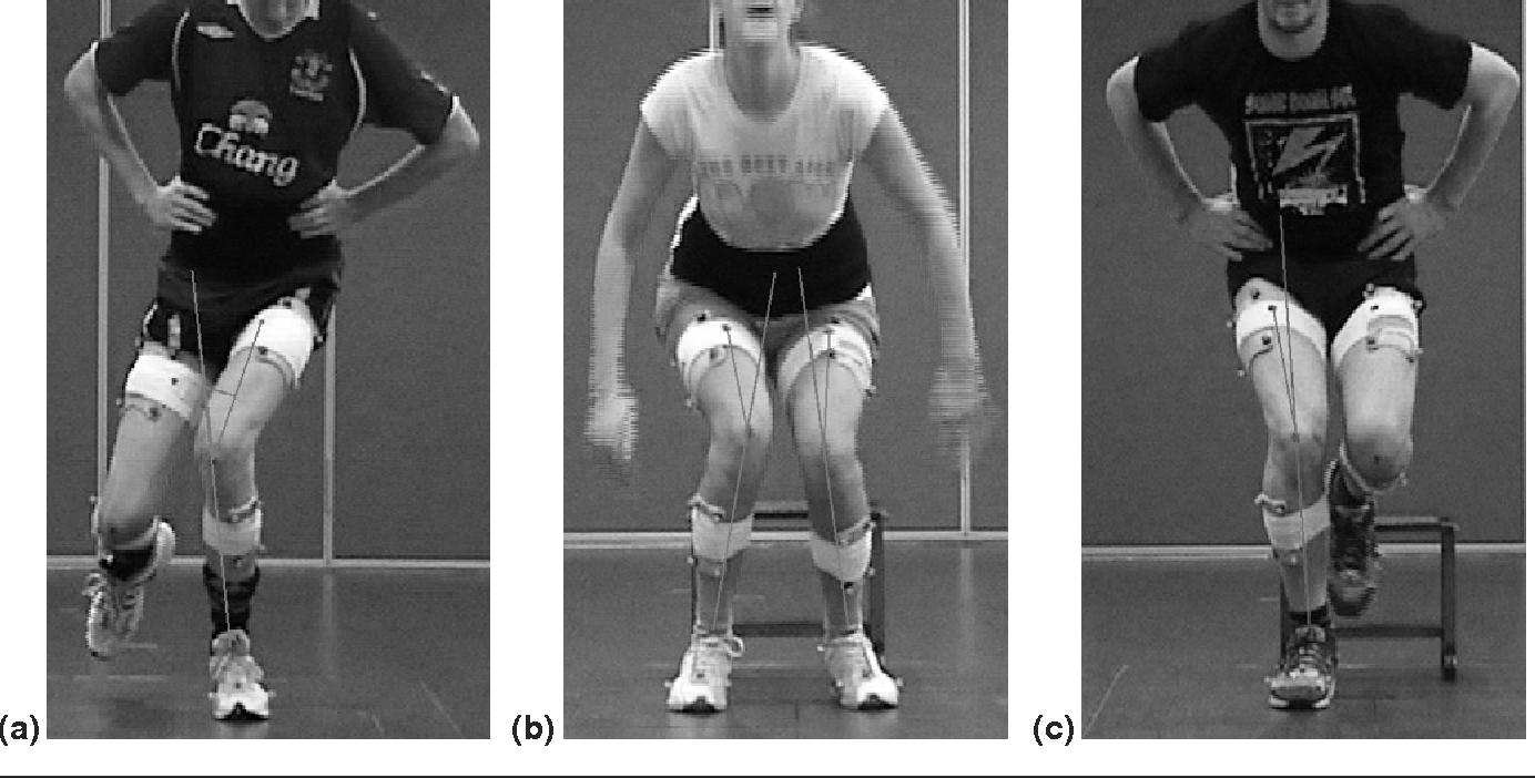 Relazione tra valgismo dinamico di ginocchio e forza dei muscoli di anca in soggetti asintomatici