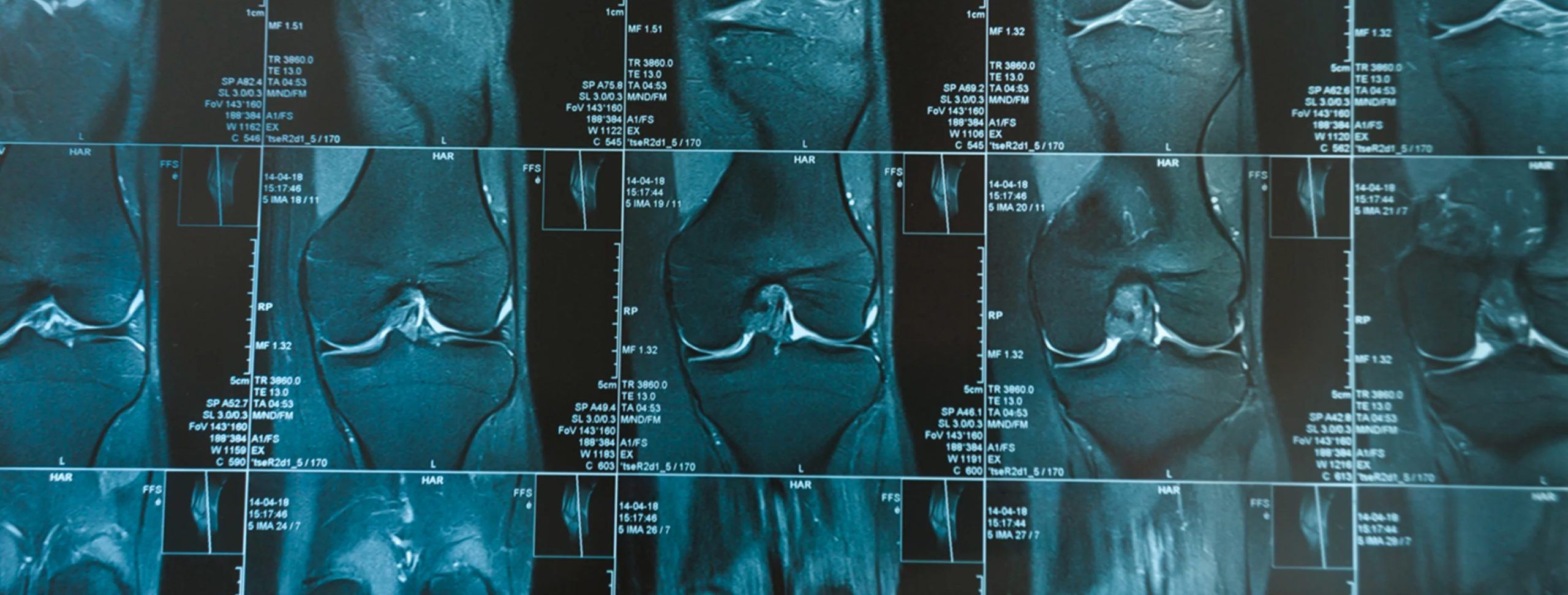 Prevalenza di alterazioni strutturali in ginocchia asintomatiche