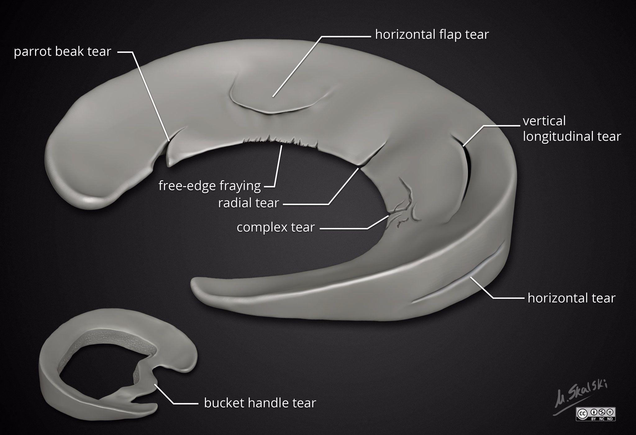 Linee guida per la gestione delle lesioni meniscali del ginocchio