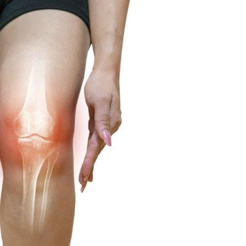Dolore e funzionalità nell'artrosi di ginocchio