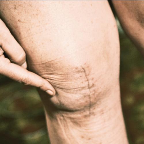 Attività sportive raccomandate dopo protesi di ginocchio