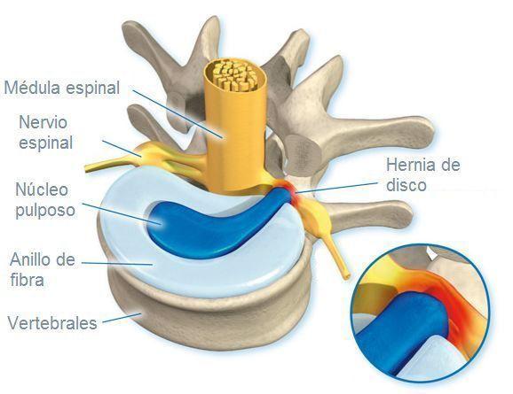 hernia-de-disco