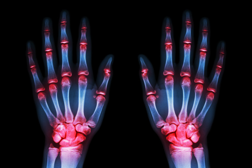 artrosis prematura a causa del deporte