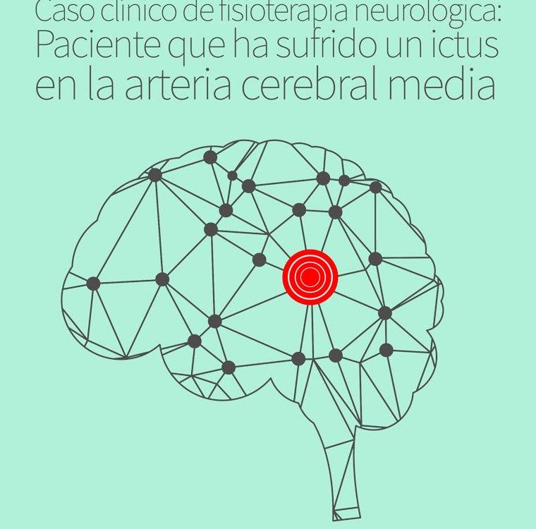 ictus-cerebral-media