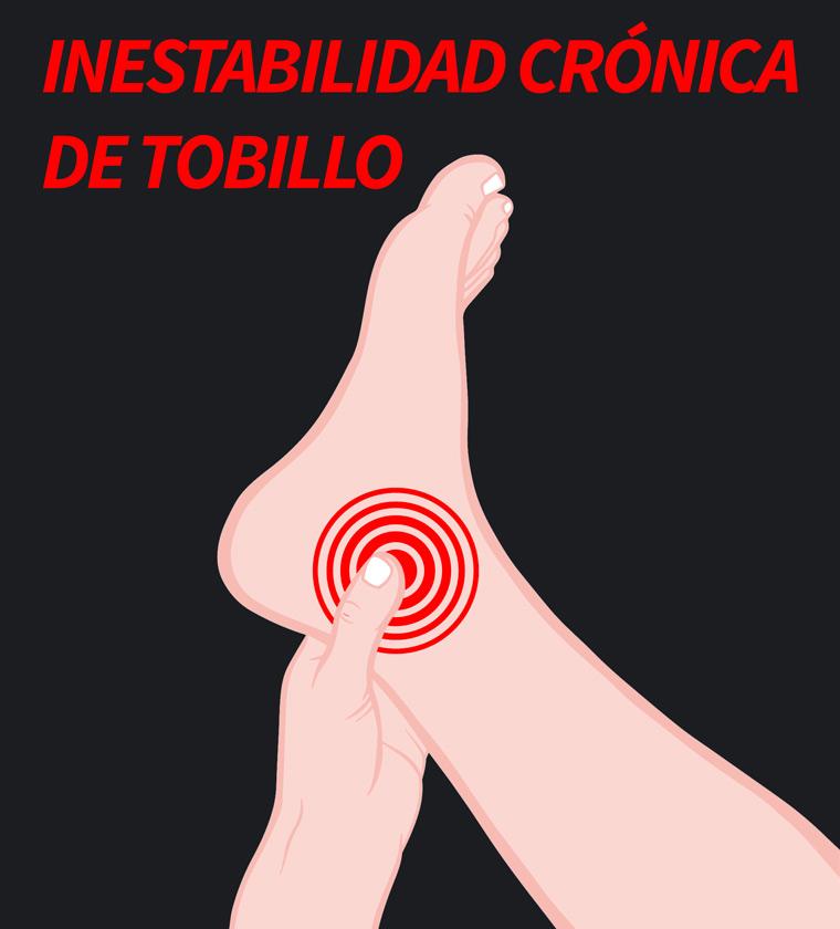 inestabilidad-tobillo