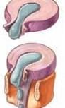ernia del disco lombare o cervicale ernia del disco senza intervento
