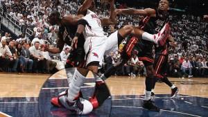 Physiotherapy Basket fisioterapia distorsione caviglia