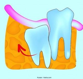 Dentes - entenda por quê é que eles só nascem duas vezes
