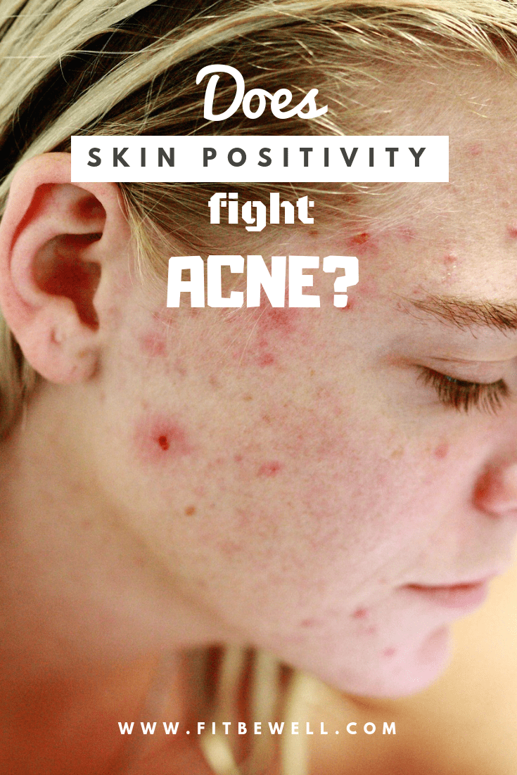 Does Skin Positivity help fight ACNE