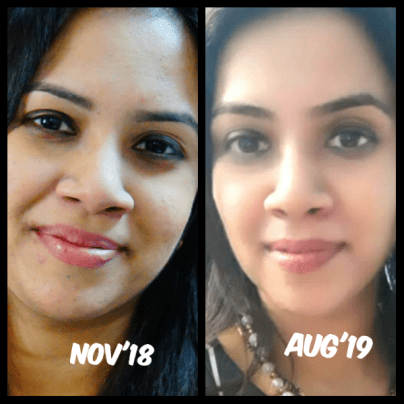 How quitting sugar helped my acne