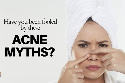 Have you believed in these acne myths? Acne facts