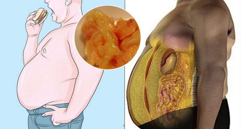 Image result for visceral fat