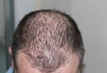Photo of Best Hair restoration for men with baldness