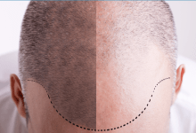 Photo of Hair Restoration Practices; Most Easy Ways