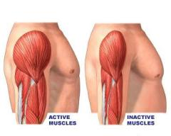 Muscle Atrophy - Muscle Wasting - Active Muscles v/s Inactive Muscless