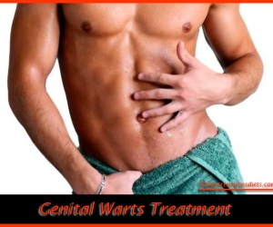 how to remove genital warts