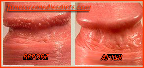 Pearly penile papules home removal method