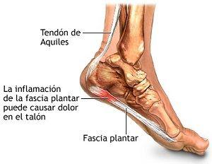tendonaquiles