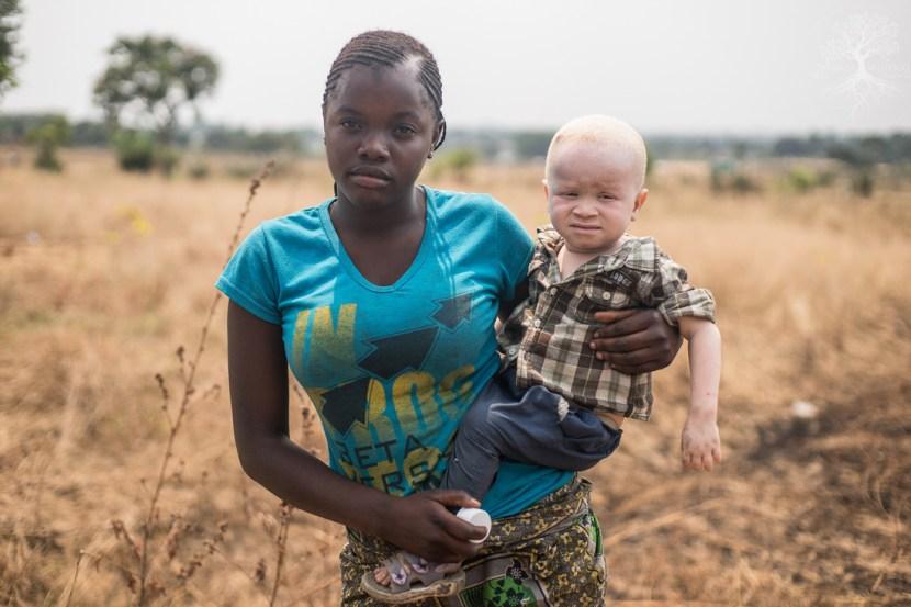 Albinisme in Afrika