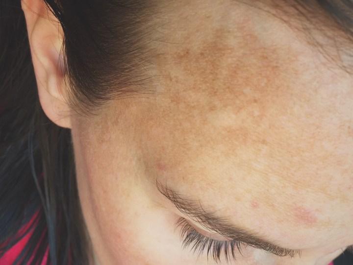 pigmentvlekken in gezicht door zon