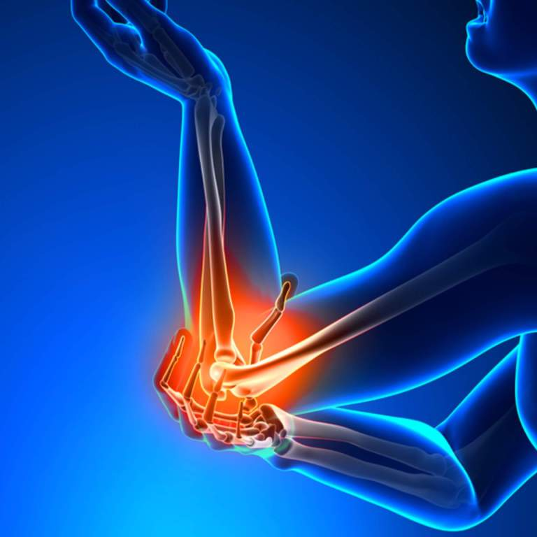 Elbow pain: Diet, Exercise, symptoms, treatment, and more - FITZABOUT