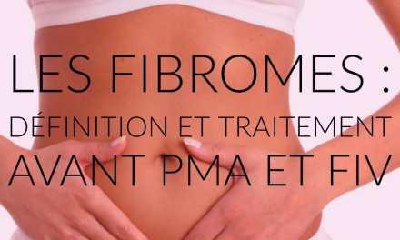 Les fibromes : définition et traitement avant PMA et FIV