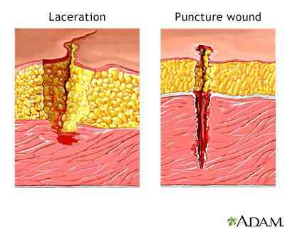 Lacerations versus puncture wounds first aid