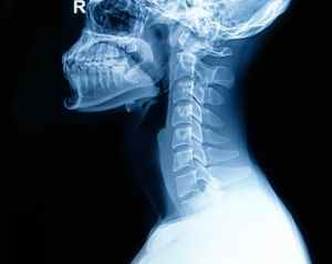 nyaki fájdalom, nyaki gerinc
