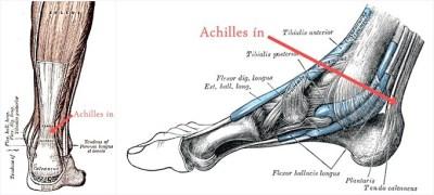 Achilles ín sérülés, gyulladás