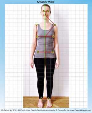 digitális testtartás vizsgálat 02