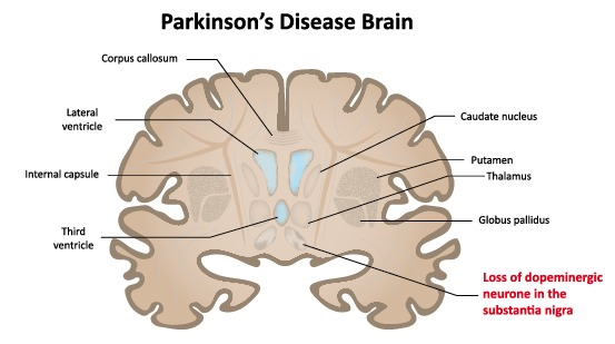 Living with Parkinson's Disease - Flagstaff Business ...