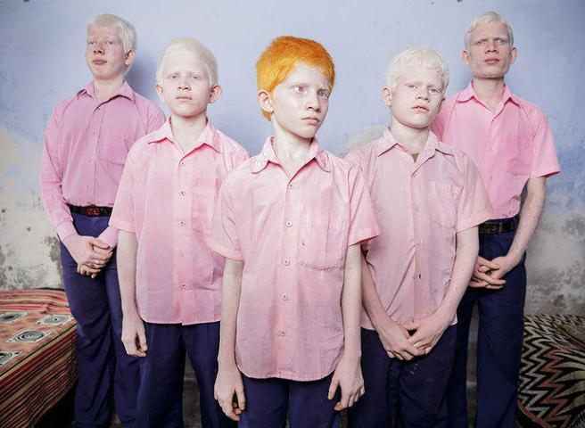 Des élèves albinos aveugles dans un dortoir de l'école de mission Vivekananda, en Inde