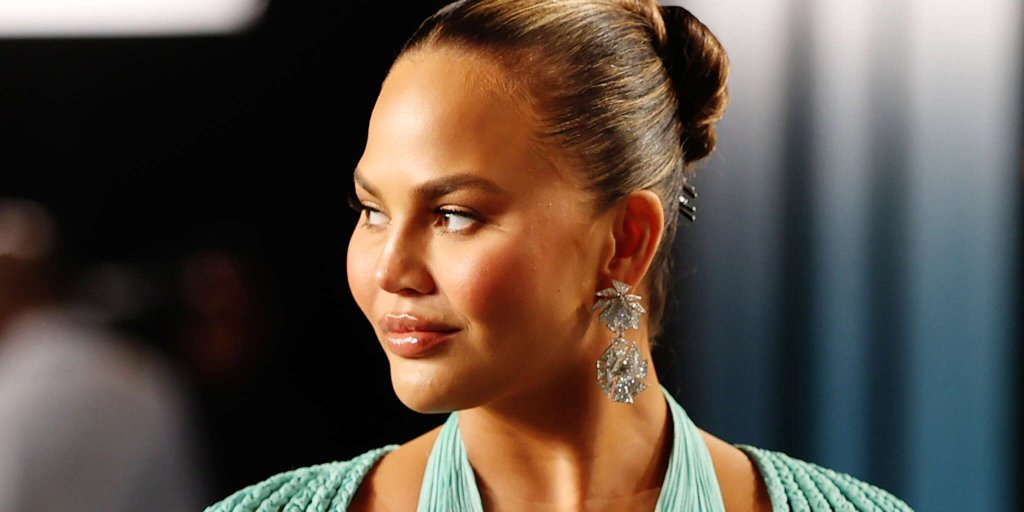 Chrissy Teigen Documents The Loss Of One Of Her Teeth After Biting Into A Roll-Up!