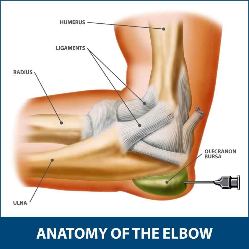 Elbow Bursitis Information | Florida Orthopaedic Institute