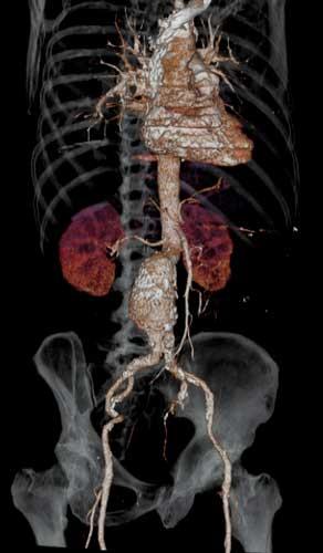 Aneurisma-de-aorta-abdominal---TC-3D