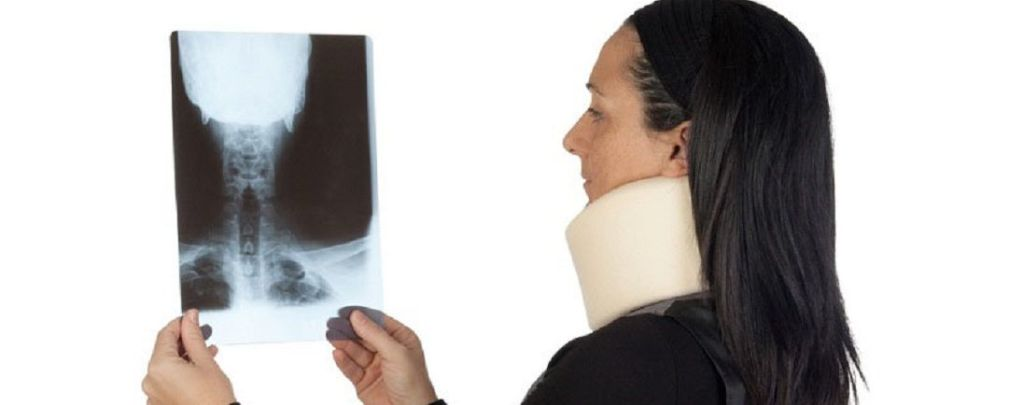 informe médico concluyente para indemnización por latigazo cervical