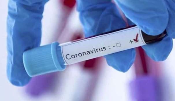 corona virüsü nedir? nasıl bulaşır? nasıl korunuruz?
