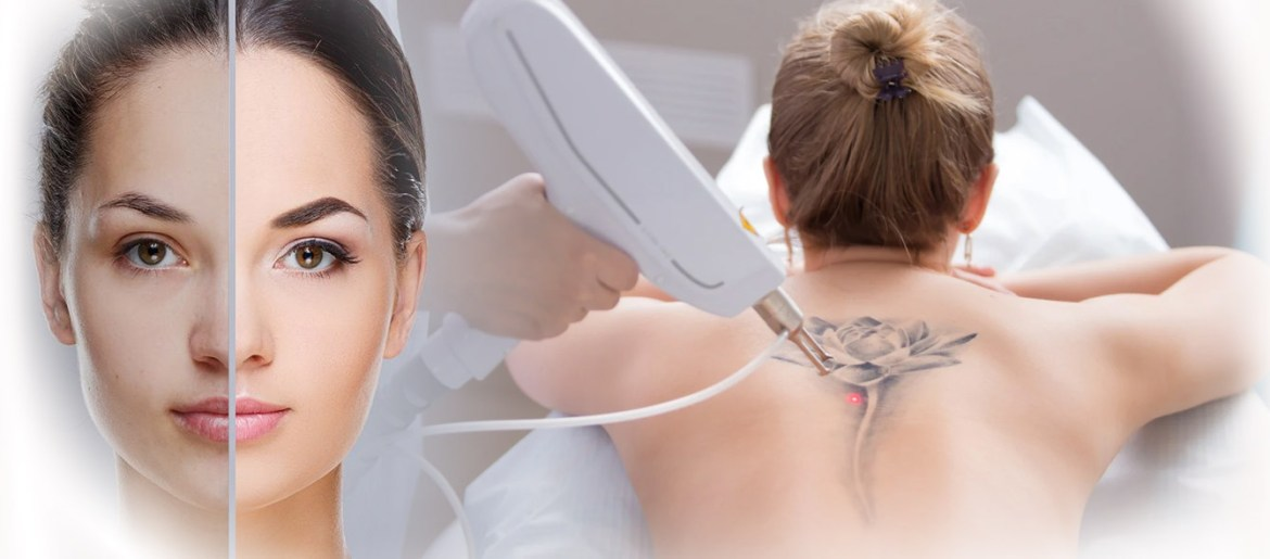 pigmentation & Tatoo removal treatment IN HYDERABAD