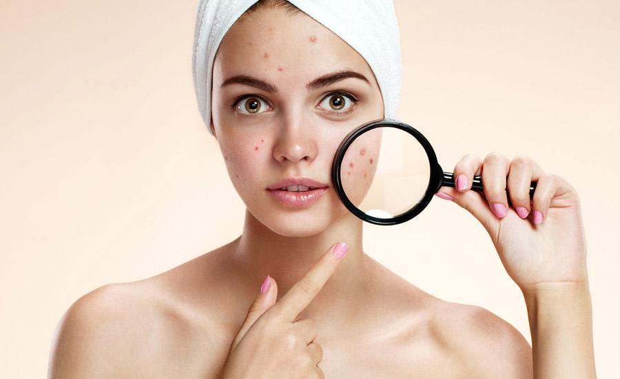 acne-treatment-near-me-FMS
