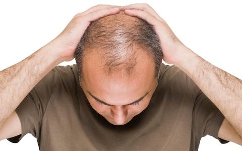 افضل علاج لتساقط الشعر من الفيتامينات للرجال والنساء