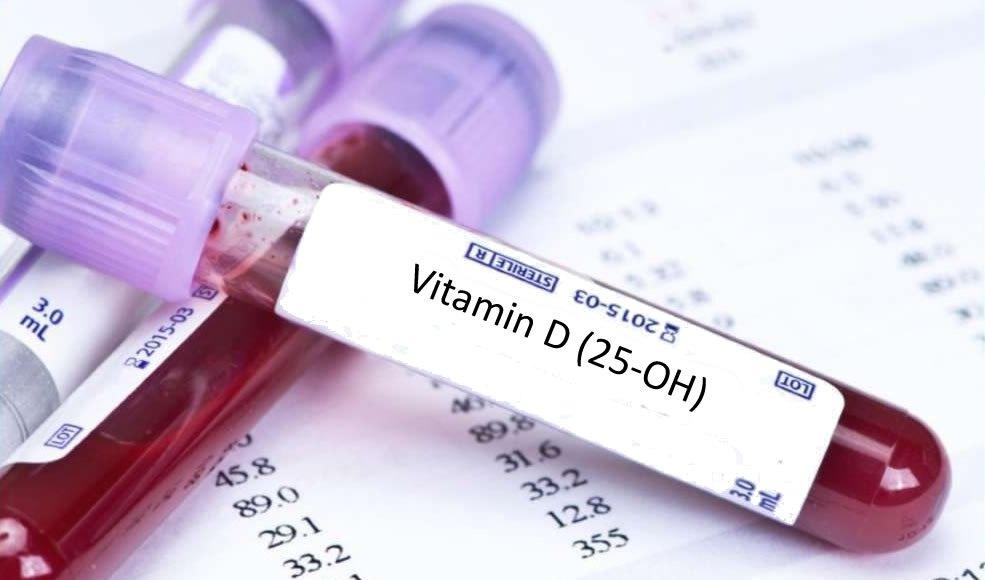 سعر تحليل فيتامين د بالمملكة – واهم اعراض نقص فيتامين د