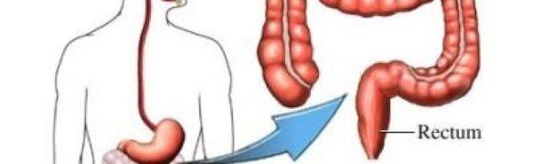 علاج القولون الهضمي للدكتور جابر القحطاني