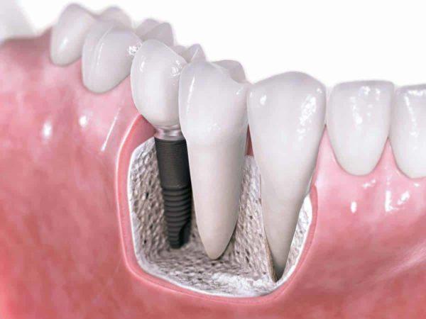 تجربتي مع زراعة الاسنان