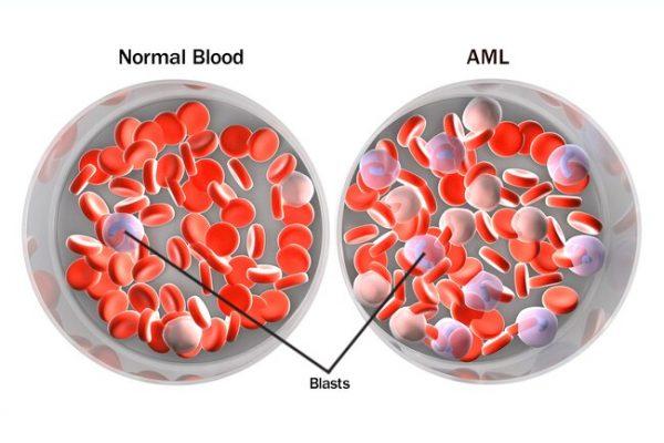 هل اللوكيميا مرض مميت وما انواع سرطان الدم اللوكيميا