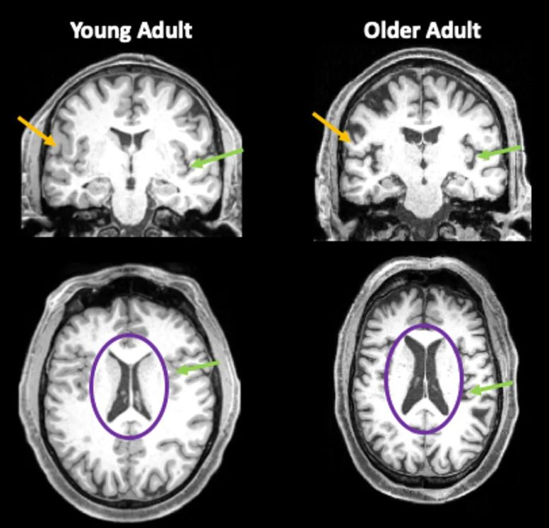 Brain Images Young and Old