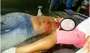 Cleuton Nascimento participava de uma festa e foi ferido mortalmente durante uma briga