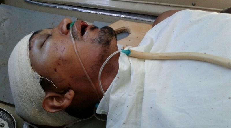 Leandro passou por três cirurgias, o tiro atravessou a cabeça.